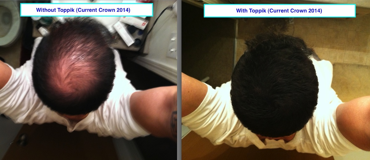2014 Toppik Before and After Crown