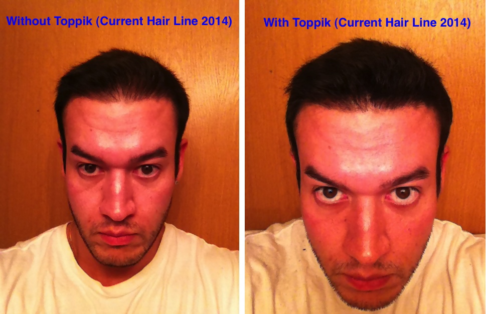 2014 toppik before and after Chris