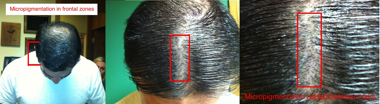micropigmentation-chris-jpg