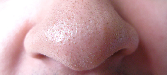 blackheads-nose