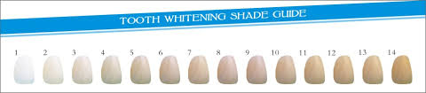 teeth-whitening-shade-and-discoloration-whitening-guide-scale