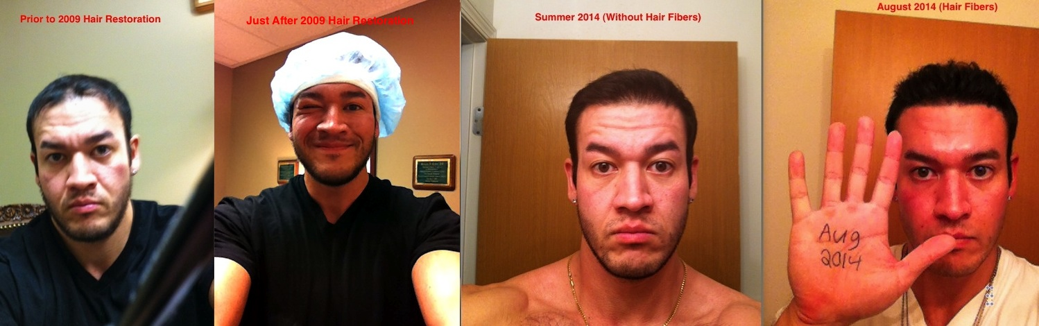 Chris Hair Restoration