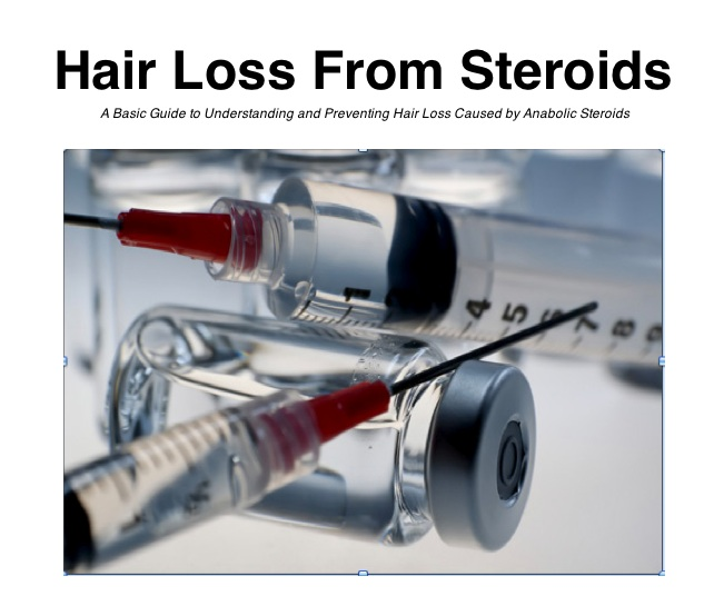 Hair Loss From Steroids Image