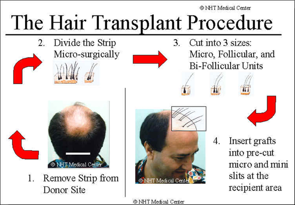 My Hair Transplant Before And After Results How To Stop Hair Loss